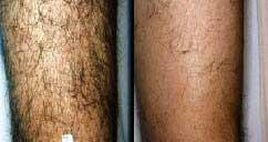 Legs hair removal, picture 5 of 9