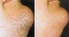 Chin hair removal, man's beard, picture 1 of 9