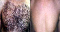 Torso hair removal, picture 7 of 9