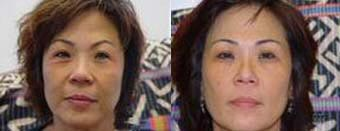 Skin Tightening (Refirme RF) of the face, skin tightening and wrinkle reductions, picture 5 of 10